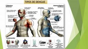 2_Dengue Chikungunya e Zika